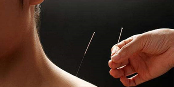 What is the emergency plan of acupuncture?